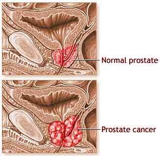 Prostate Cancer and TCM