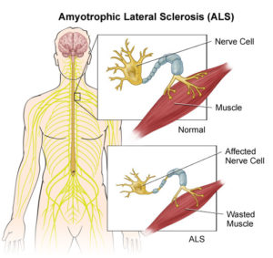 als what is amyotrophic lateral sclerosis how can tcm help