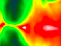Thermography -Applications in Chinese Medicine