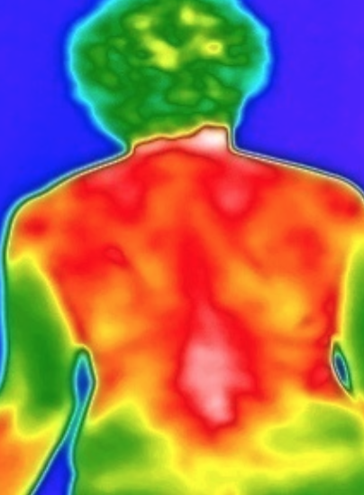 Video Excerpt from Applications of Thermography in Chinese Medicine with Yuxiang Wang, R.TCMP